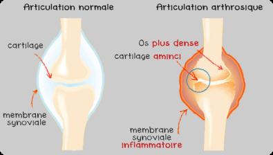 articulation-normale-arthrose
